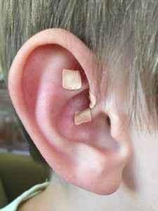Ear Seeds on Ear.jpg