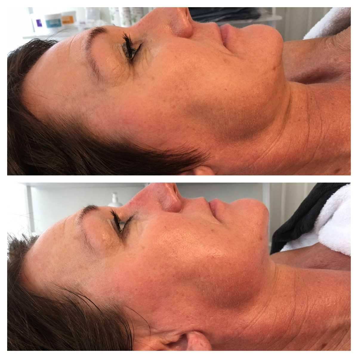 før og efter 1 beh. Vie L-Therapy