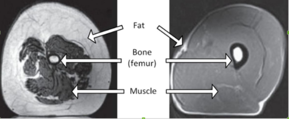 muscle-cross-section.png